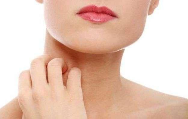 Che cos'è la dermatite