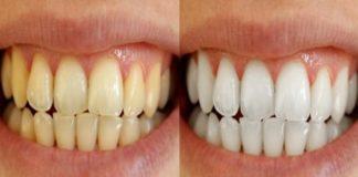 Denti ingialliti
