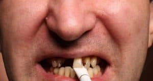 cosi ti spacchi i denti