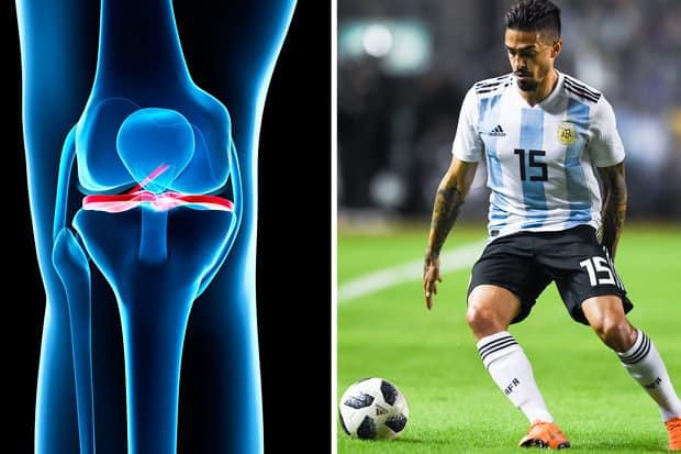 re-injury del legamento crociato anteriore