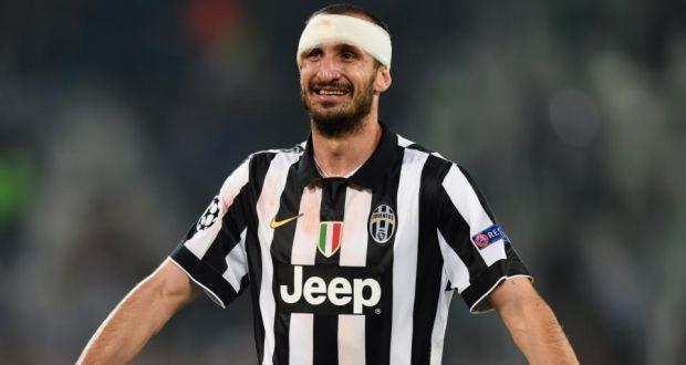 Juventus 4 CL