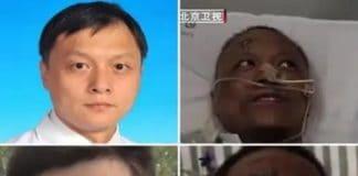 Cinesi escono dalla rianimazione con la pelle nera